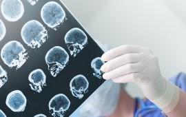 Molecular Markers: Fingerprinting Brain Tumors